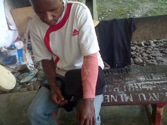 Photo: Markus Giban (19), one of the members of the KNPB who was arrested by police and had his arm broken. (Photo: KNPB / SuaraPapua.com)
