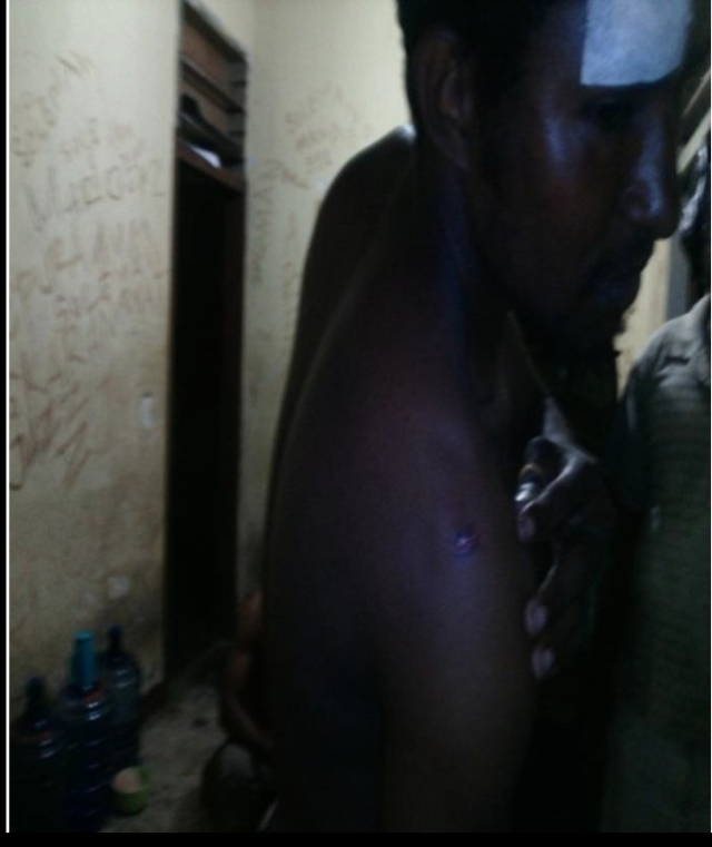 Amsal's body is covered with bruises caused by Airforce military members
