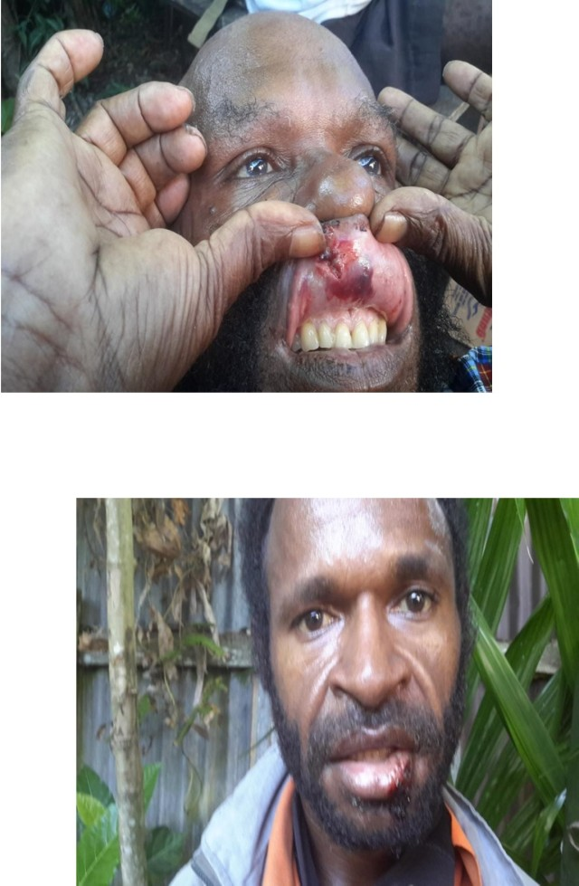 Top: Mikhael Zonggenaw's Upper lip was beaten by the Police. Bottom: Martinus Adii, Lower lip was beaten by the Police
